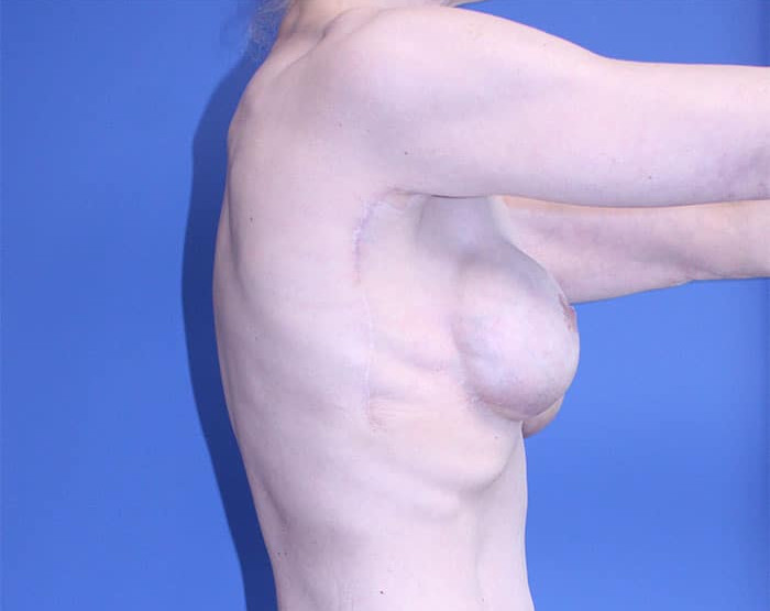 Breast Lift with Implants – Case 2