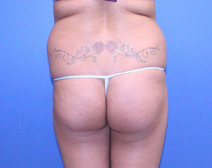 Abdominoplasty & Liposuction with Fat Grafting to Buttock